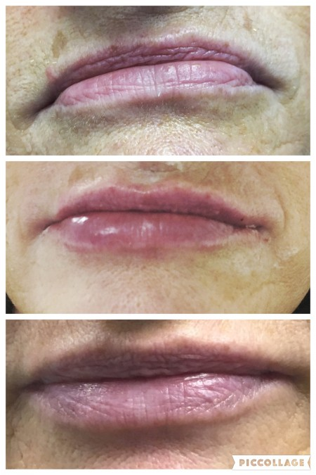 Dermal and Lip Fillers in Bangor - Lumiere Facial Clinic